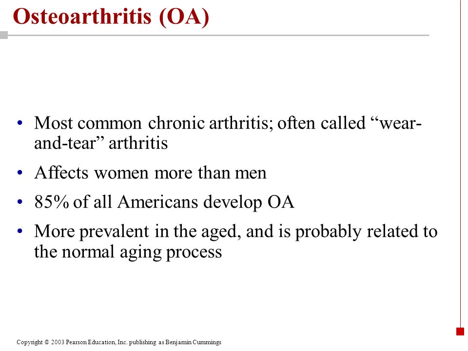 Osteoarthritis (OA) Most common chronic arthritis; often called wear-and-tear arthritis. Affects women more than men.