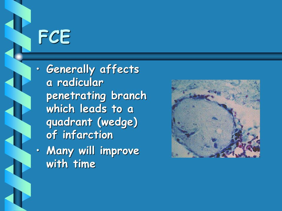 FCE Generally affects a radicular penetrating branch which leads to a quadrant (wedge) of infarction.