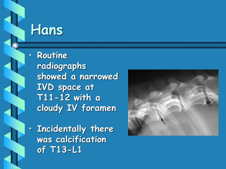 Hans Routine radiographs showed a narrowed IVD space at T11-12 with a cloudy IV foramen.