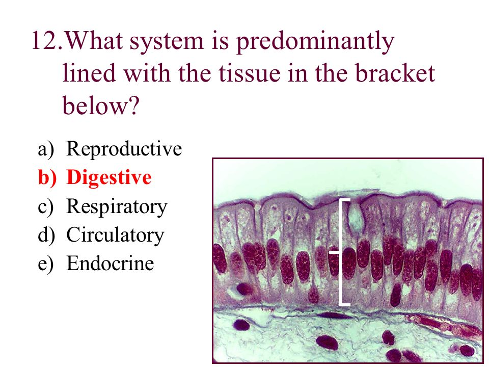 What system is predominantly lined with the tissue in the bracket below