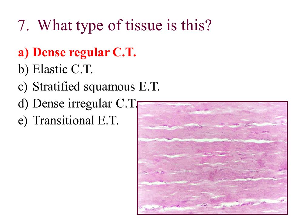 What type of tissue is this
