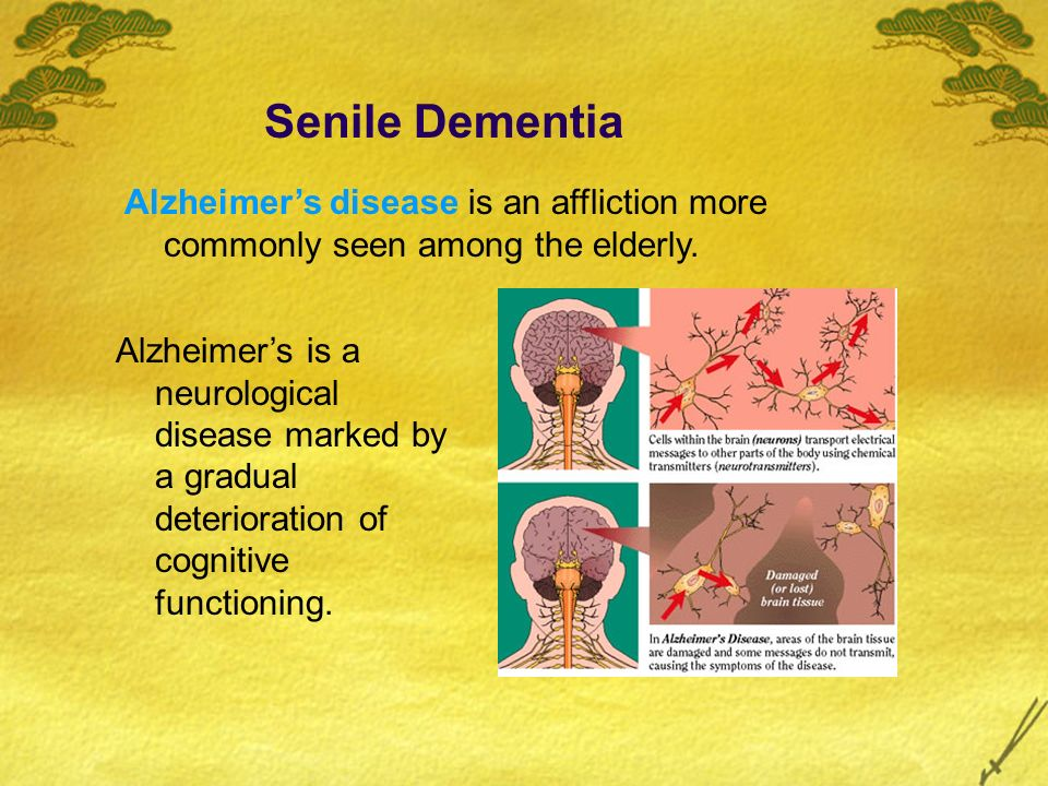 Senile Dementia Alzheimer's disease is an affliction more commonly seen among the elderly.