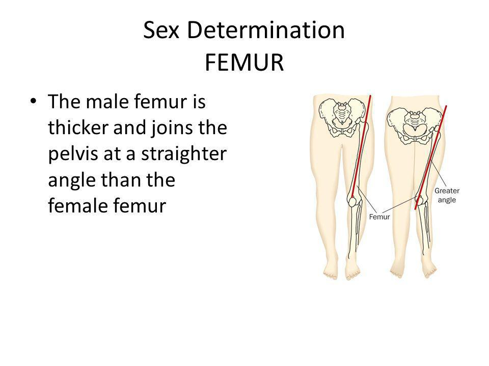 Sex Determination FEMUR