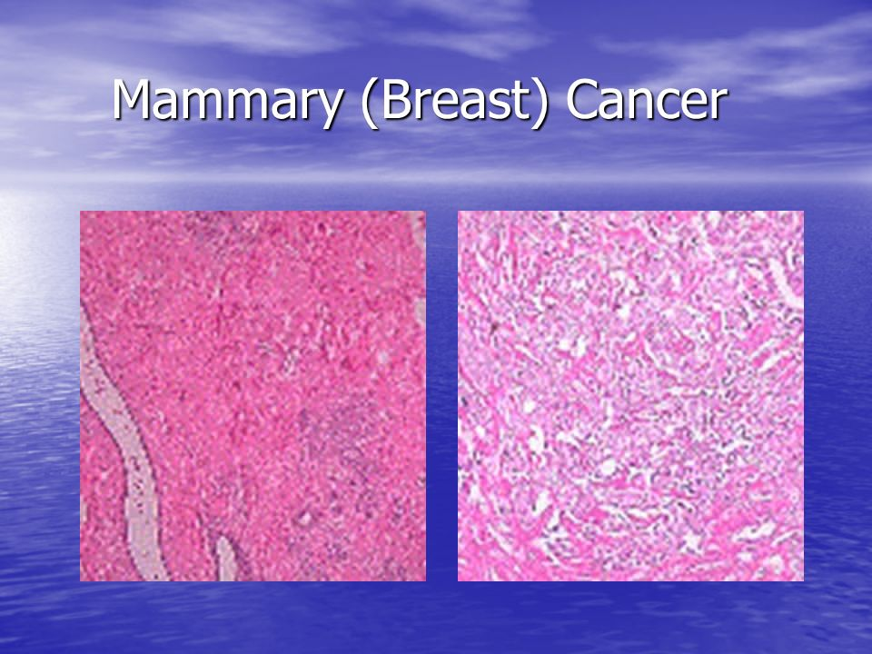 Mammary (Breast) Cancer