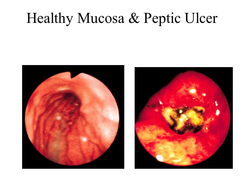 Healthy Mucosa & Peptic Ulcer