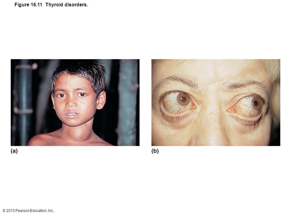 Figure 16.11 Thyroid disorders.