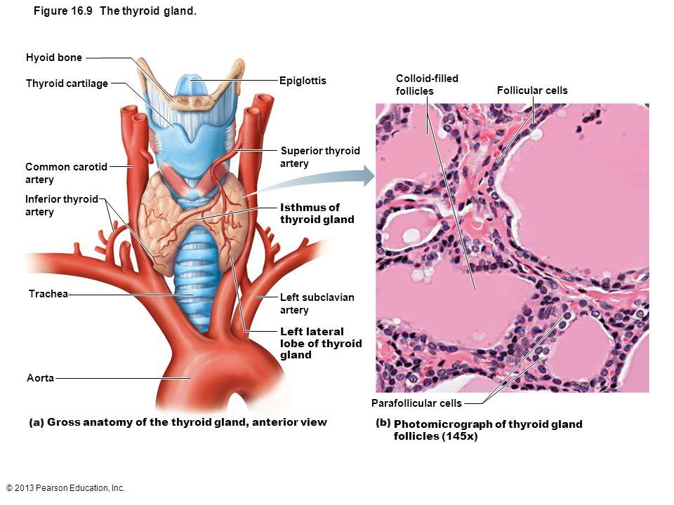 Figure 16.9 The thyroid gland.