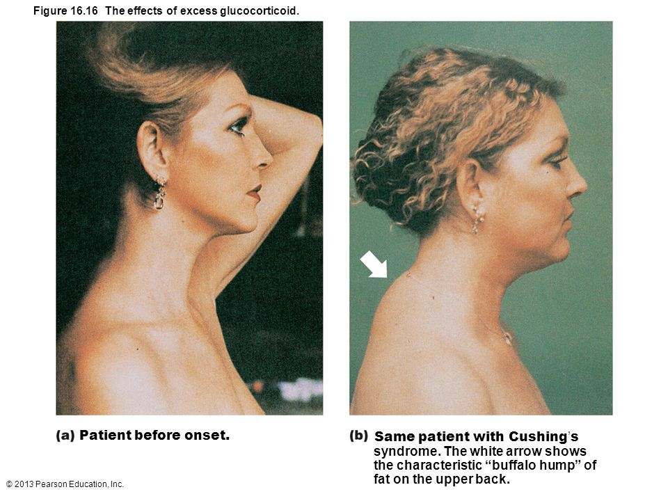 Same patient with Cushing's syndrome. The white arrow shows