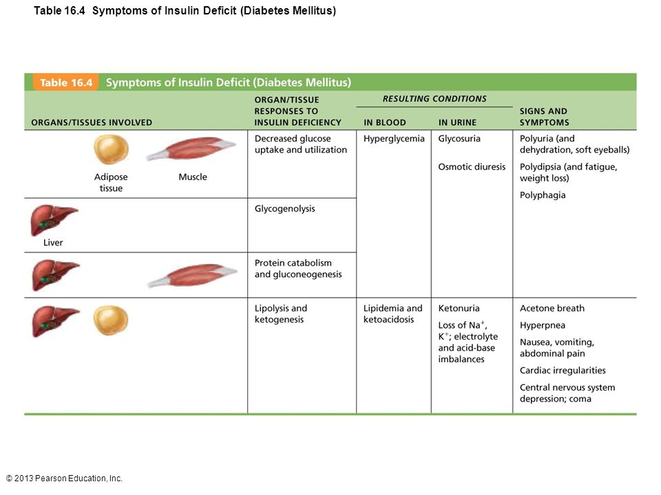 Table 16.4 Symptoms of Insulin Deficit (Diabetes Mellitus)