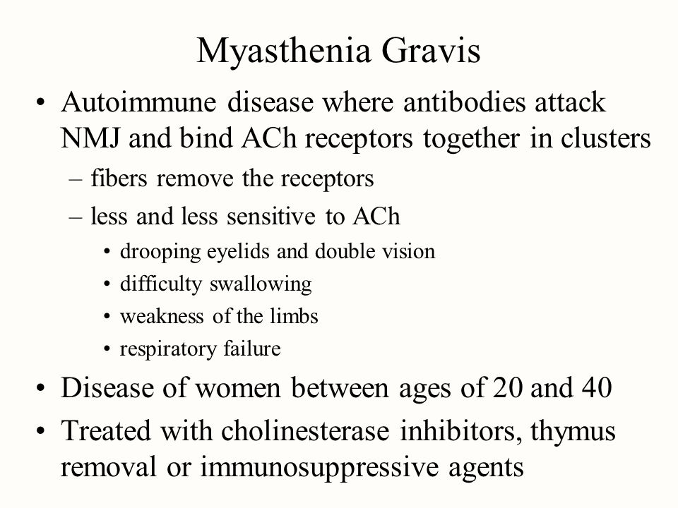 Myasthenia Gravis Autoimmune disease where antibodies attack NMJ and bind ACh receptors together in clusters.