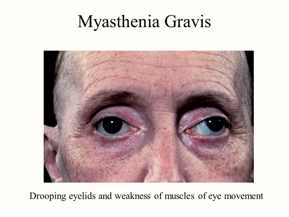 Myasthenia Gravis Drooping eyelids and weakness of muscles of eye movement