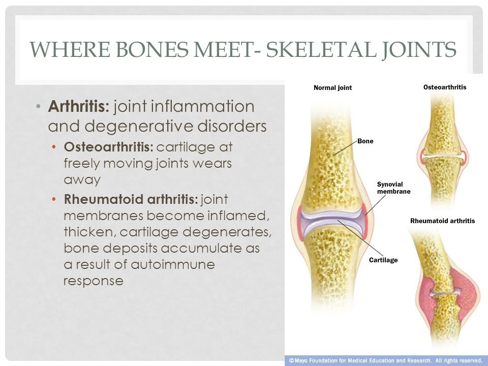 Where bones Meet- Skeletal Joints