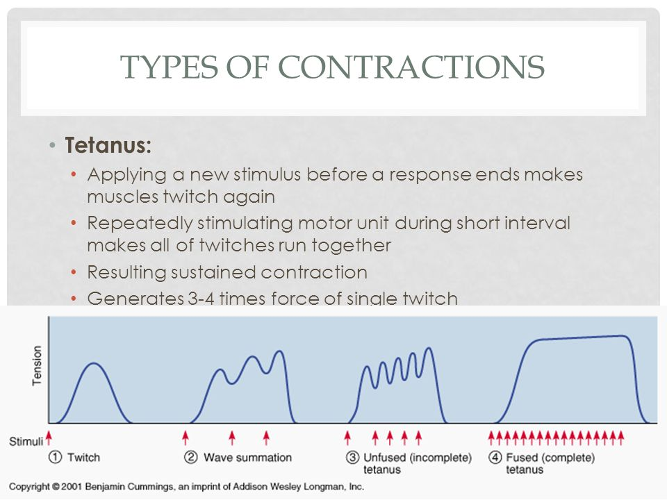 Types of Contractions Tetanus:
