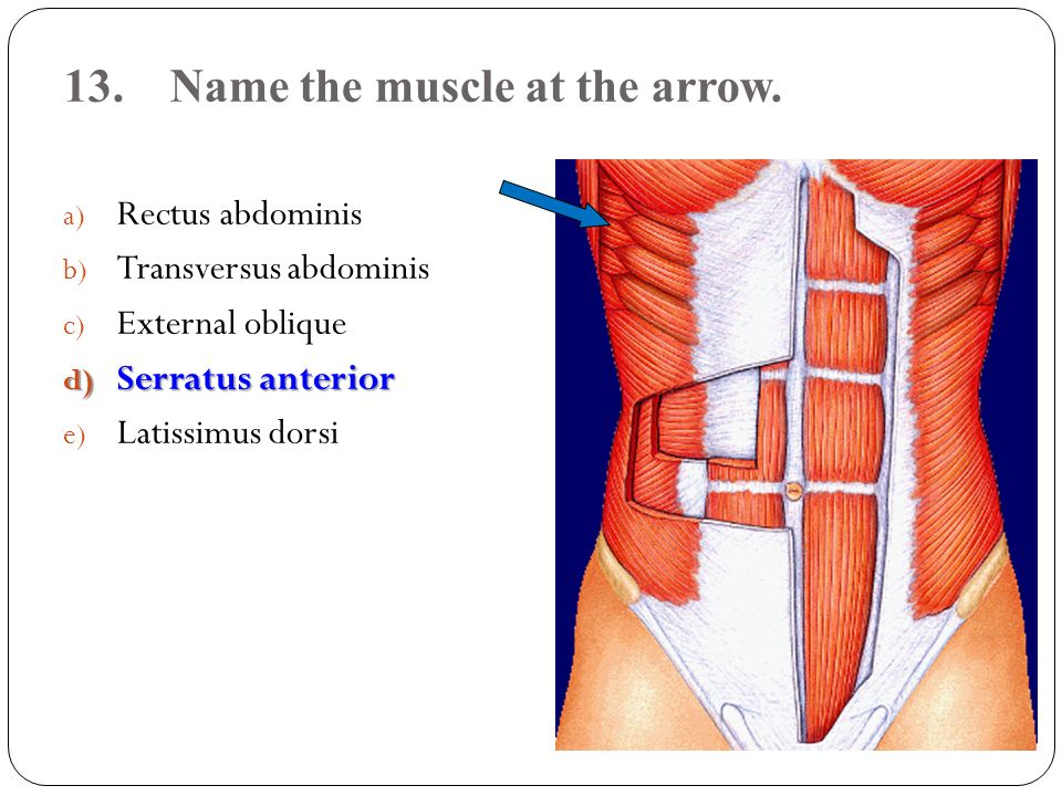 13. Name the muscle at the arrow.