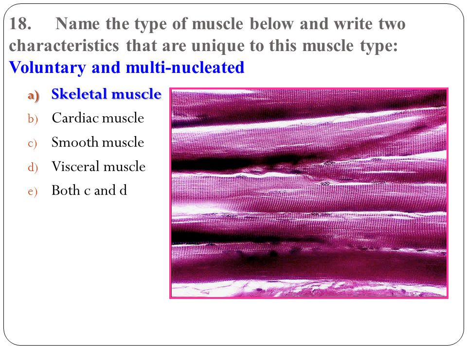 18. Name the type of muscle below and write two characteristics that are unique to this muscle type: Voluntary and multi-nucleated