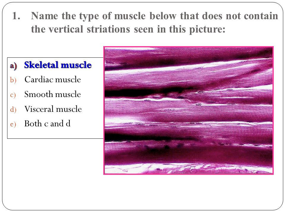 1. Name the type of muscle below that does not contain the vertical striations seen in this picture:
