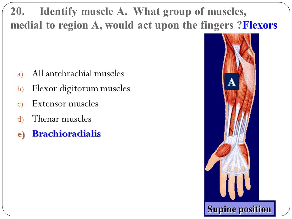 20. Identify muscle A. What group of muscles, medial to region A, would act upon the fingers Flexors