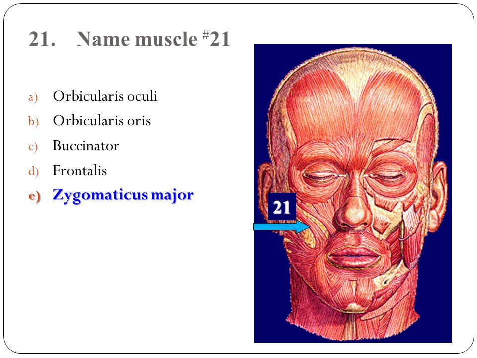 21. Name muscle #21 21 Orbicularis oculi Orbicularis oris Buccinator