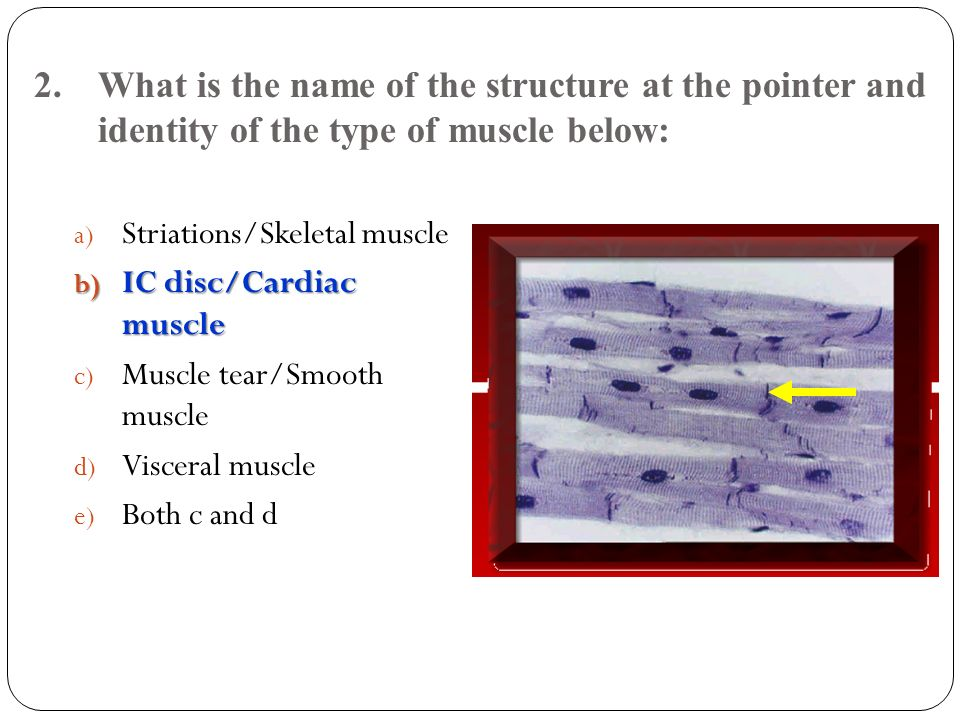 2. What is the name of the structure at the pointer and identity of the type of muscle below: