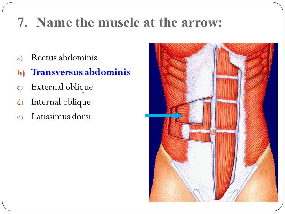 7. Name the muscle at the arrow:
