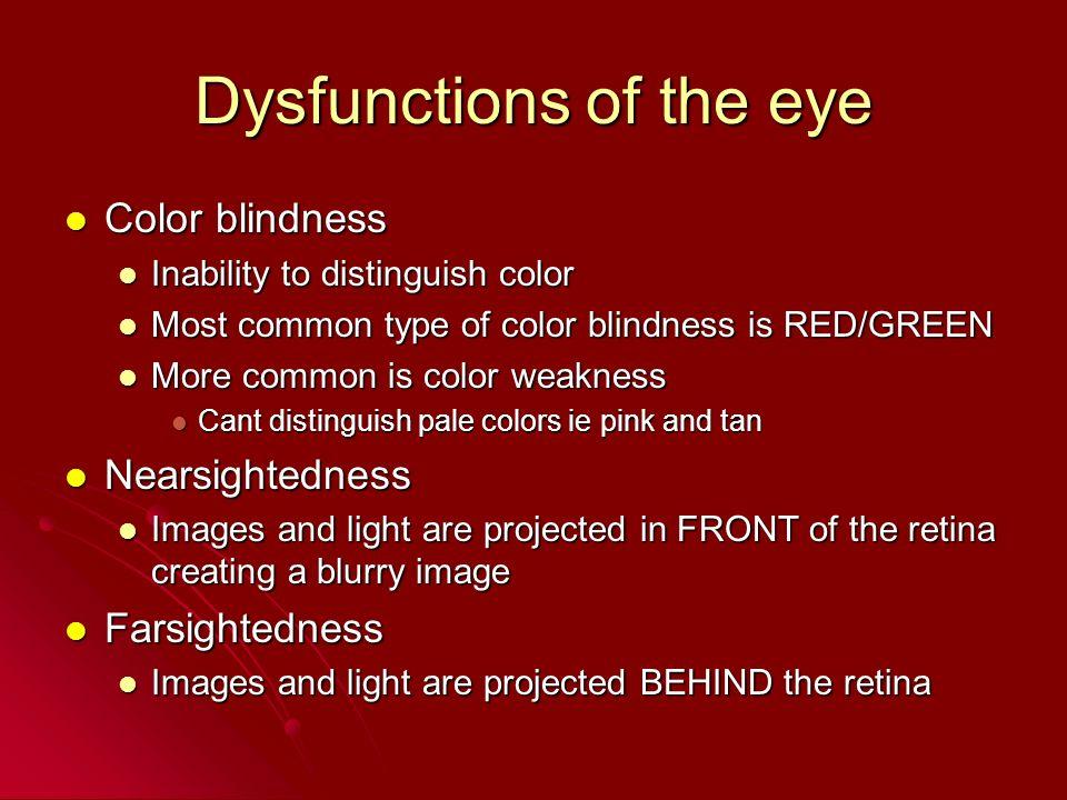 Dysfunctions of the eye