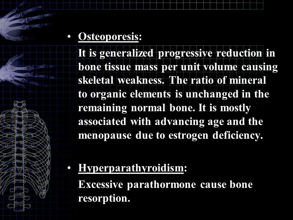 Osteoporesis: