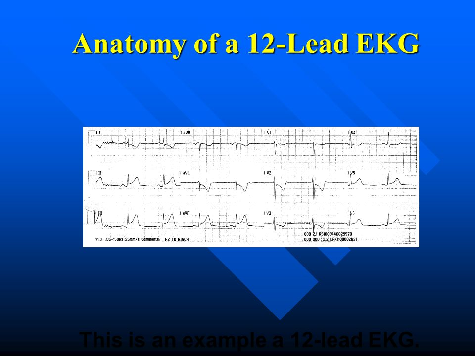 This is an example a 12-lead EKG.