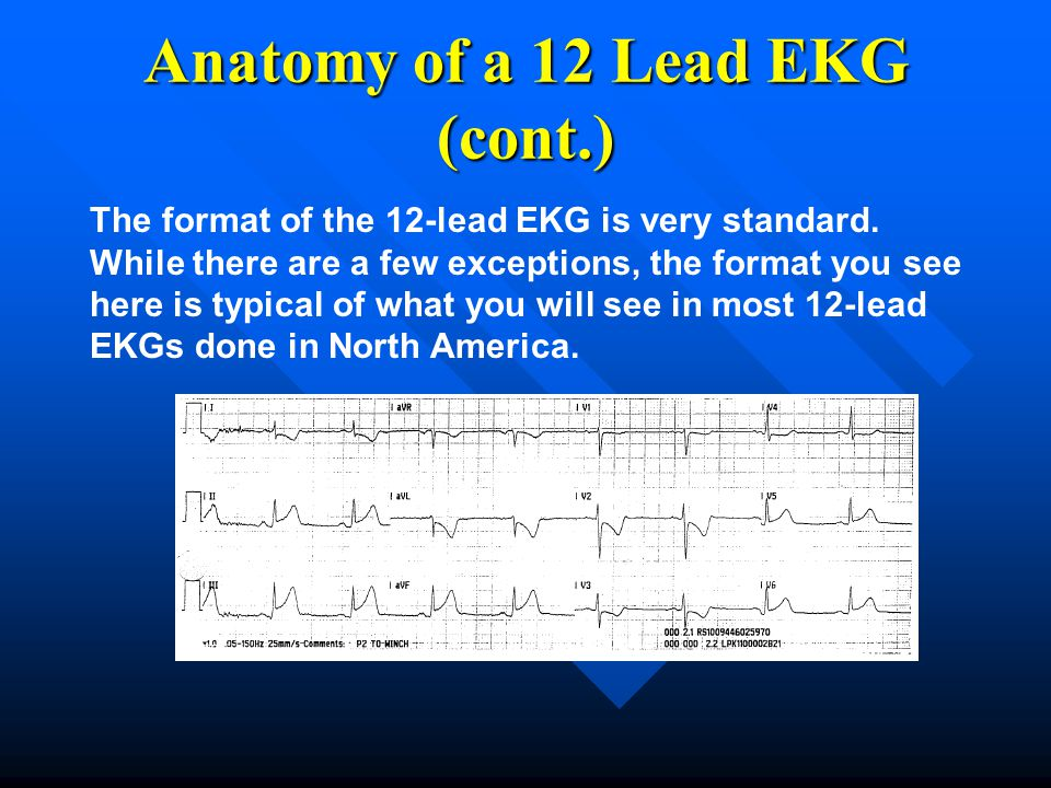 Anatomy of a 12 Lead EKG (cont.)