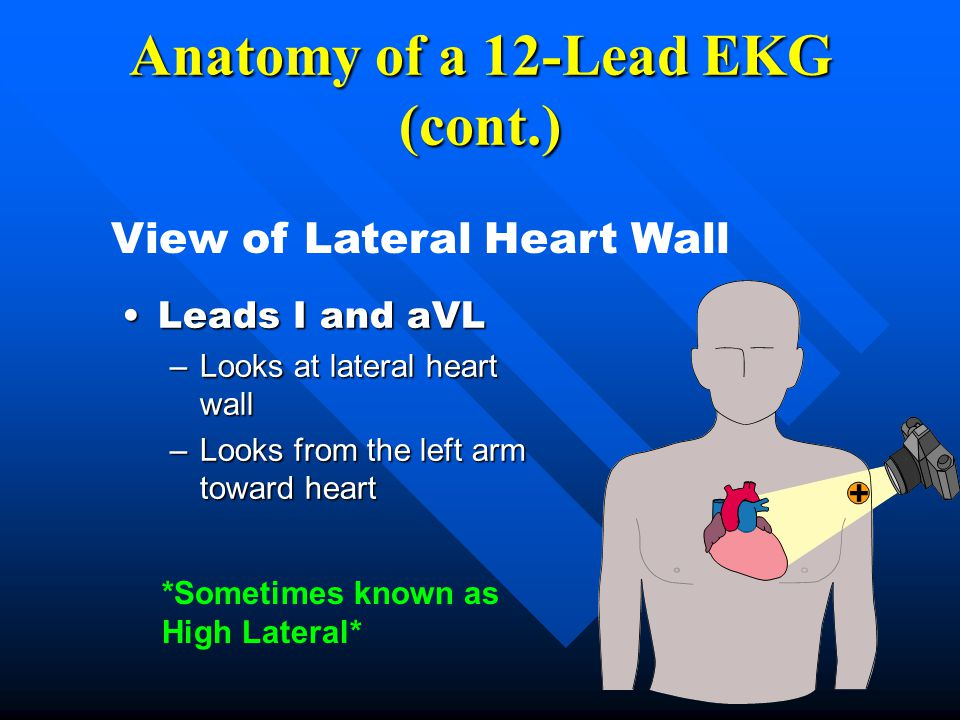 Anatomy of a 12-Lead EKG (cont.)