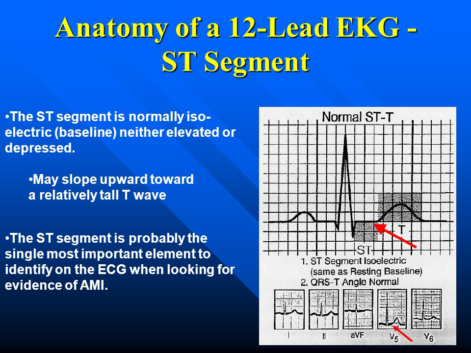 Anatomy of a 12-Lead EKG - ST Segment