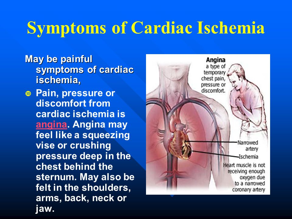 Symptoms of Cardiac Ischemia