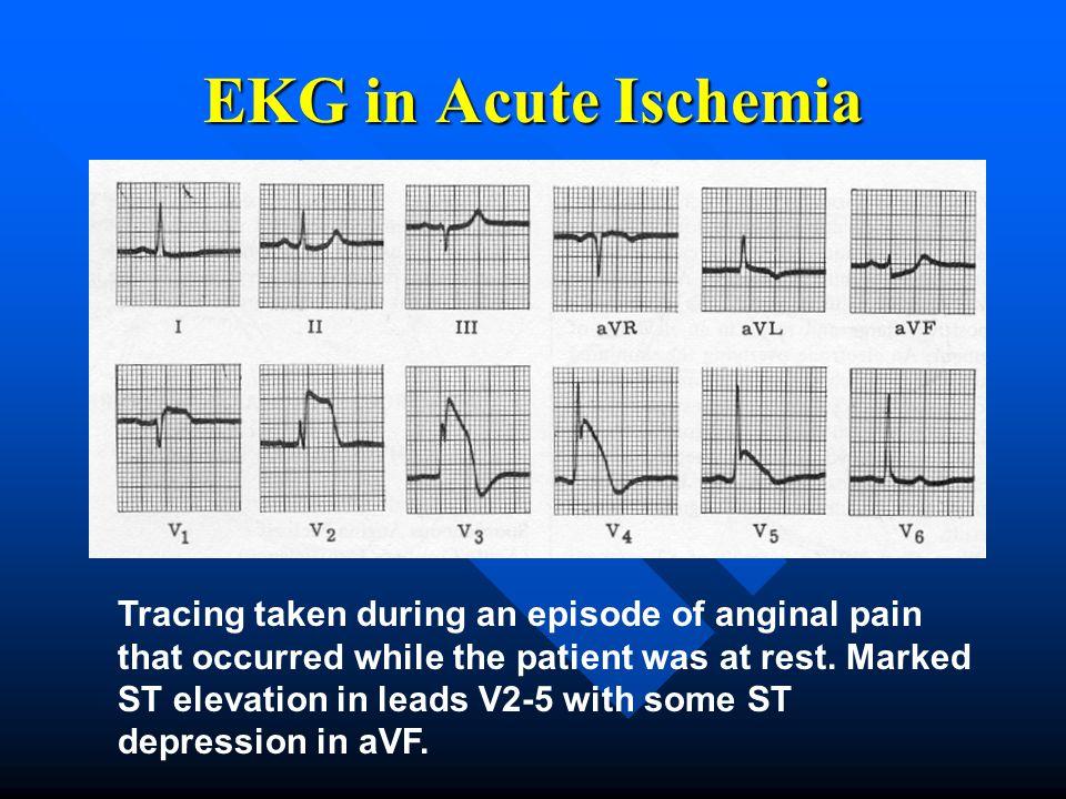 EKG in Acute Ischemia