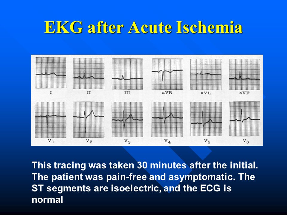 EKG after Acute Ischemia