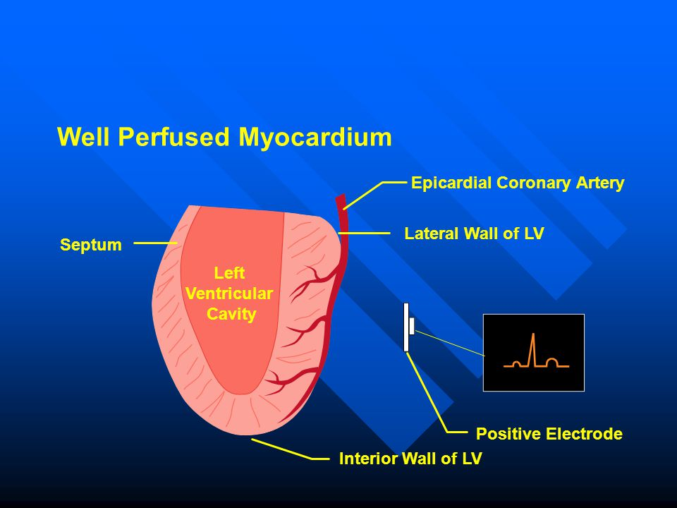 Well Perfused Myocardium