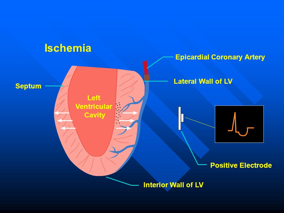 Ischemia Epicardial Coronary Artery Lateral Wall of LV Septum Left