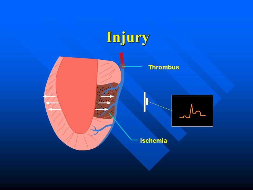 Injury Thrombus Ischemia