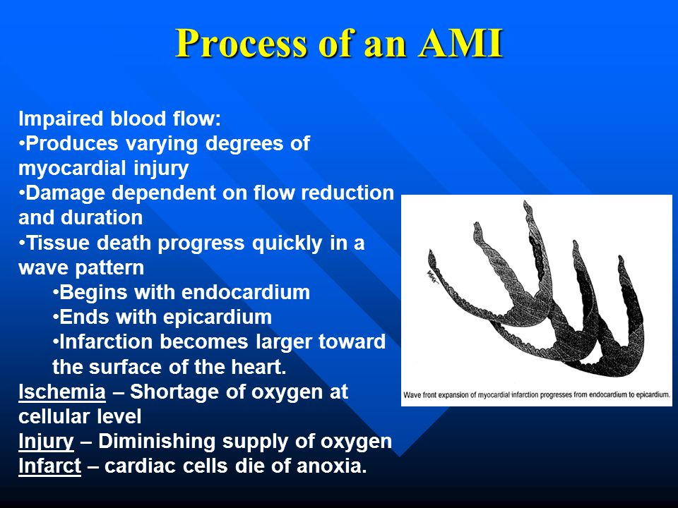 Process of an AMI Impaired blood flow: