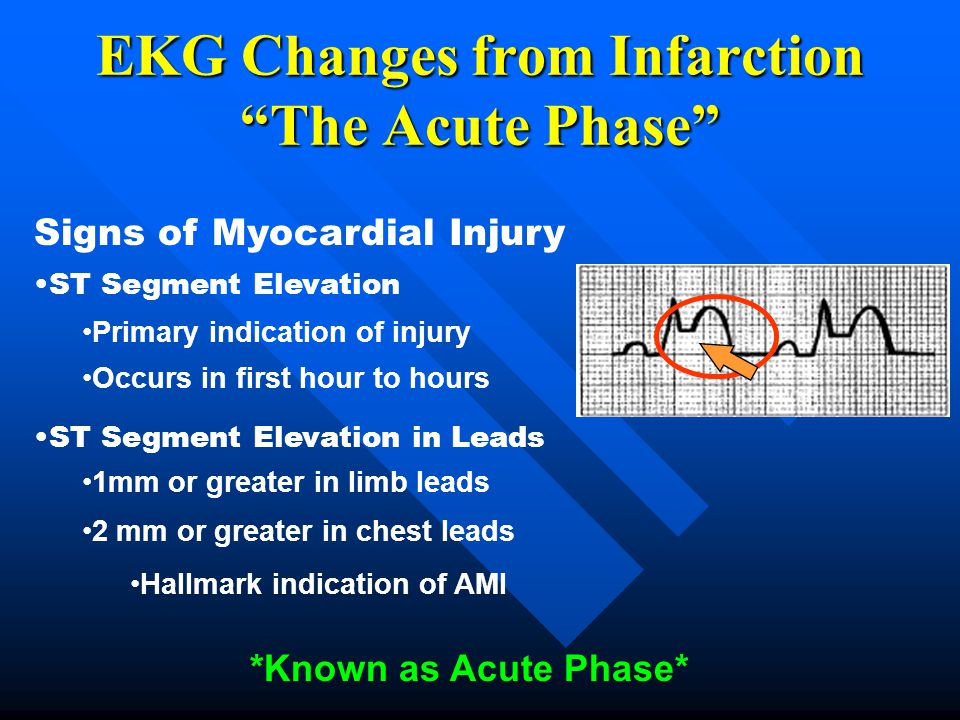 EKG Changes from Infarction The Acute Phase