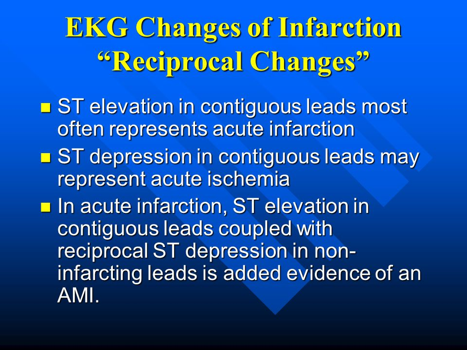 EKG Changes of Infarction Reciprocal Changes
