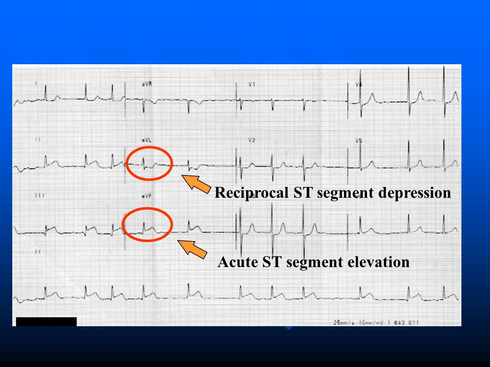 Reciprocal ST segment depression Acute ST segment elevation
