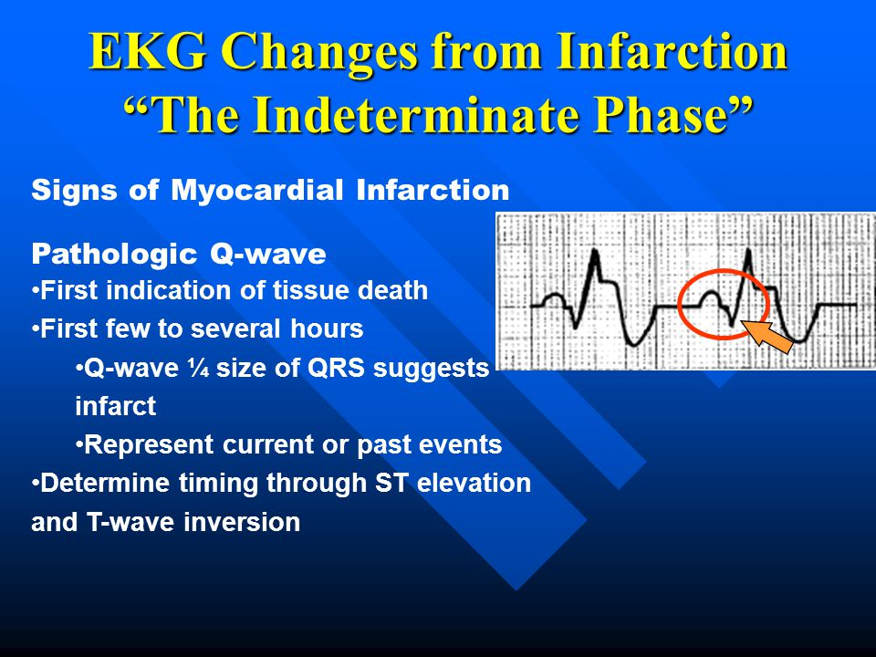 EKG Changes from Infarction The Indeterminate Phase
