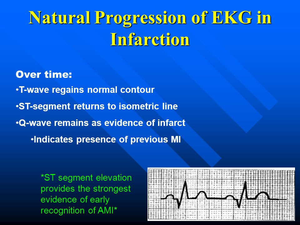 Natural Progression of EKG in Infarction