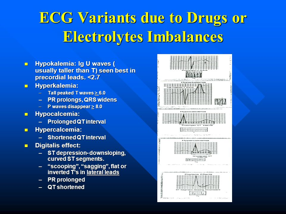 ECG Variants due to Drugs or Electrolytes Imbalances