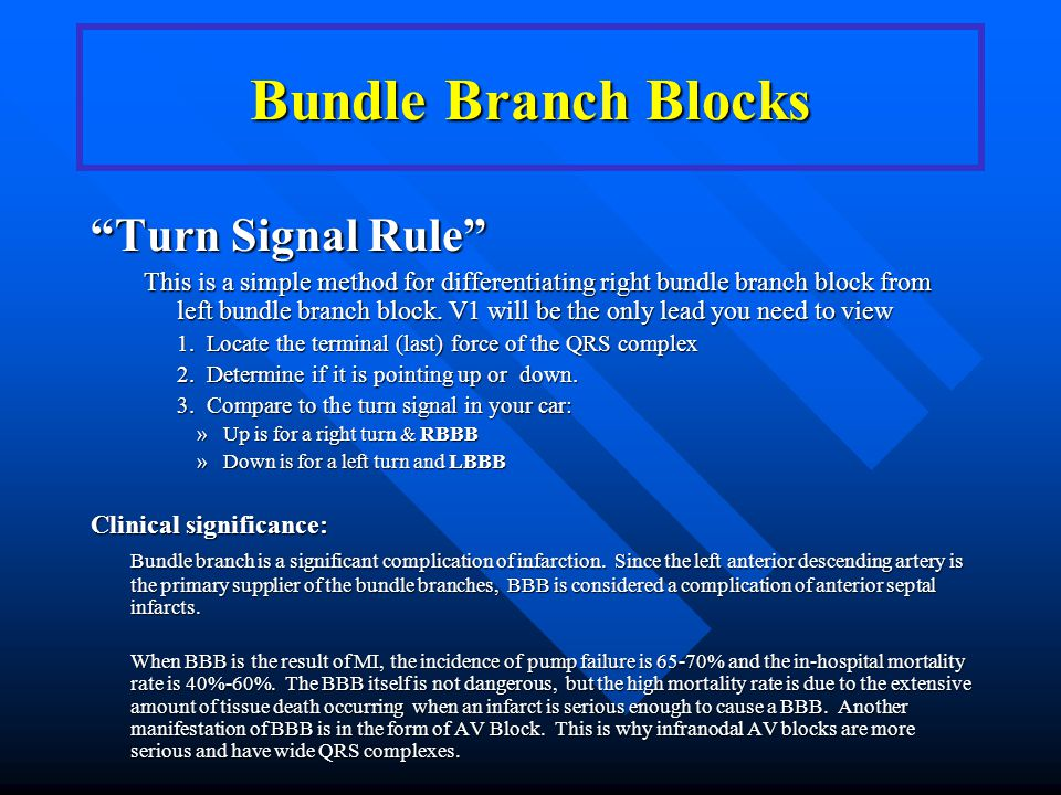 Bundle Branch Blocks Turn Signal Rule