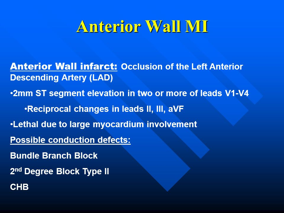 Anterior Wall MI Anterior Wall infarct: Occlusion of the Left Anterior Descending Artery (LAD)