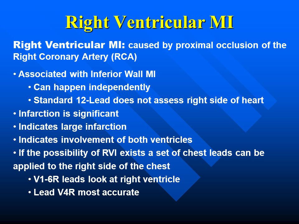 Right Ventricular MI Right Ventricular MI: caused by proximal occlusion of the Right Coronary Artery (RCA)