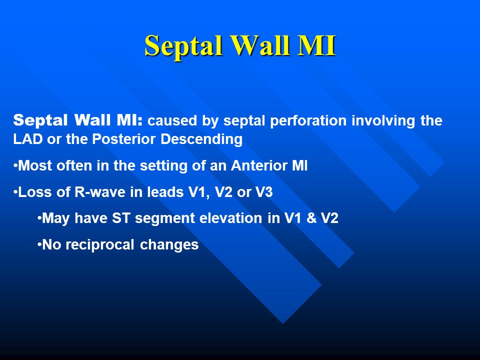 Septal Wall MI Septal Wall MI: caused by septal perforation involving the LAD or the Posterior Descending.