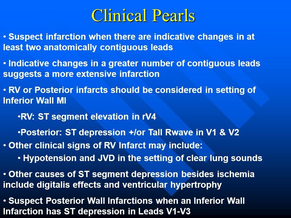 Clinical Pearls Suspect infarction when there are indicative changes in at least two anatomically contiguous leads.