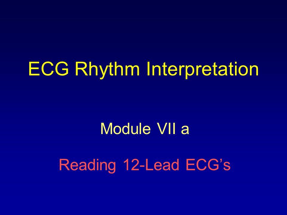 ECG Rhythm Interpretation