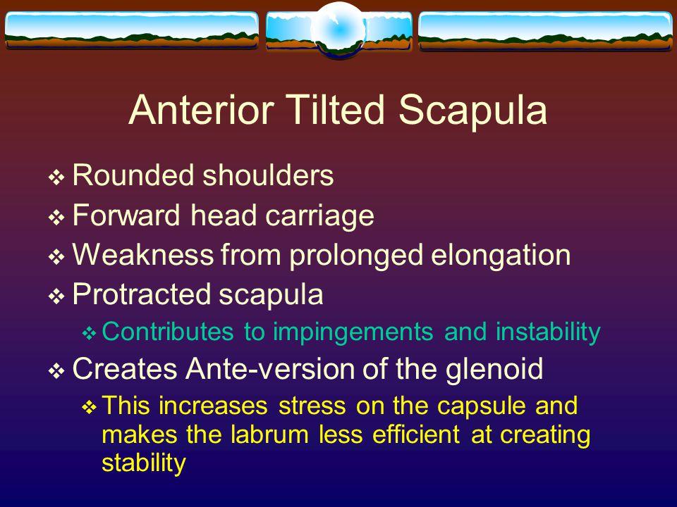 Anterior Tilted Scapula